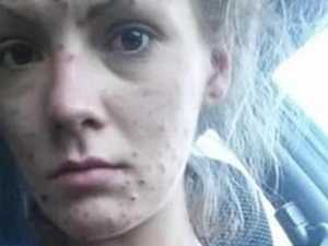 Drug addict's jaw-dropping new look