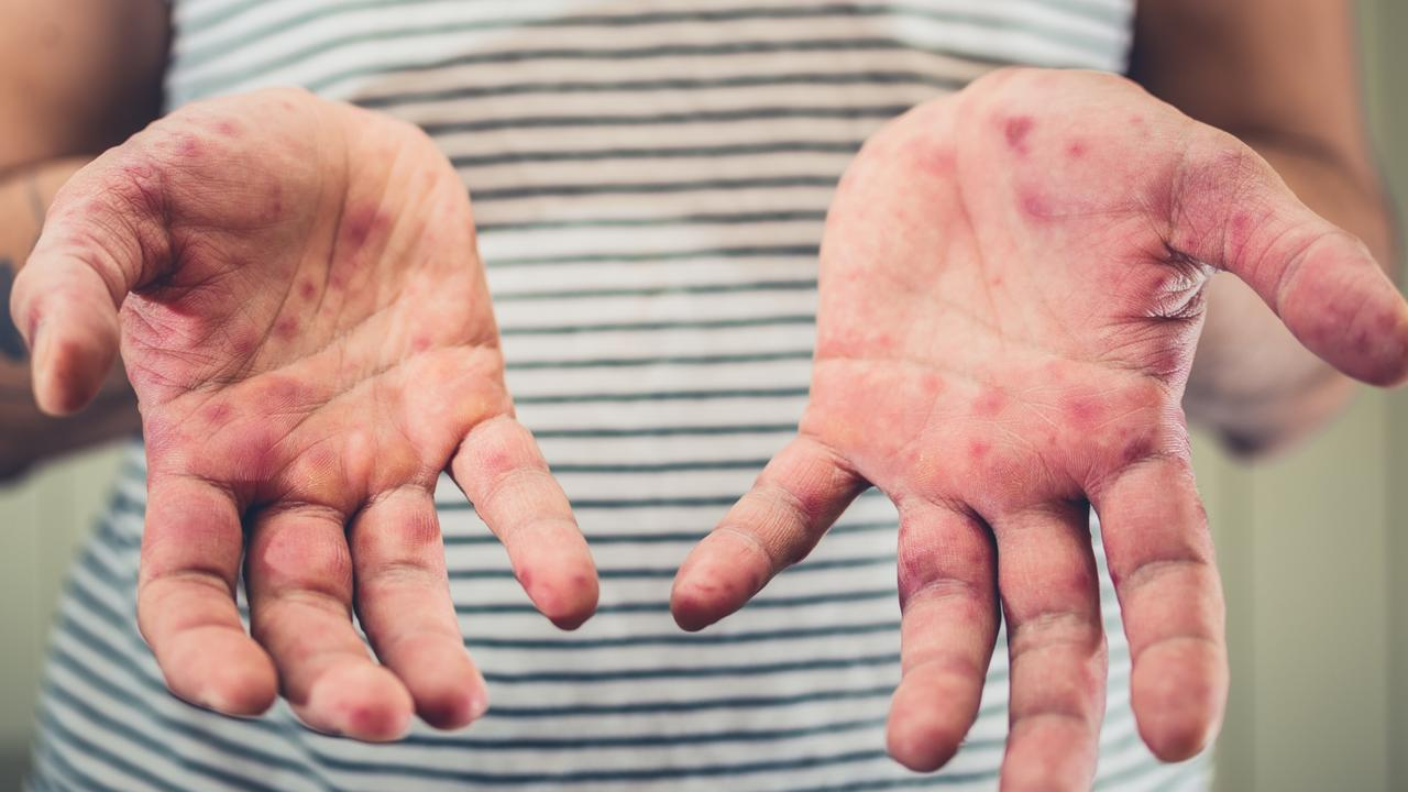 Young man with hand foot and mouth disease