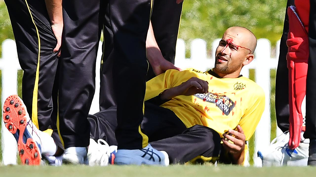 Ashton Agar of the Warriors is after being hit in the head while fielding.