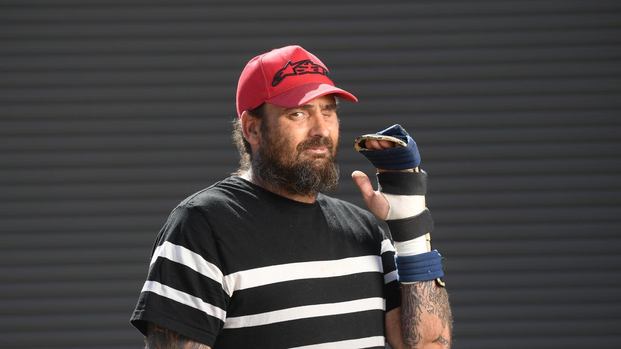Phillip Warburton cut his hand in an accident involving a Samurai sword.