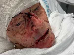 Pictures show 'cowardly' attack on 84yo