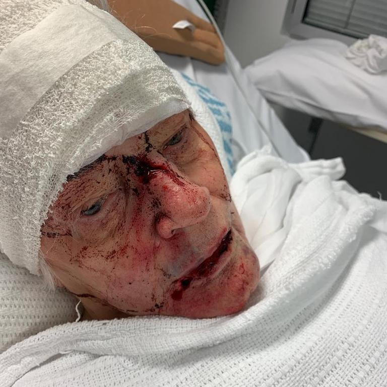 Patricia was left with shocking injuries. Picture: NSW Police