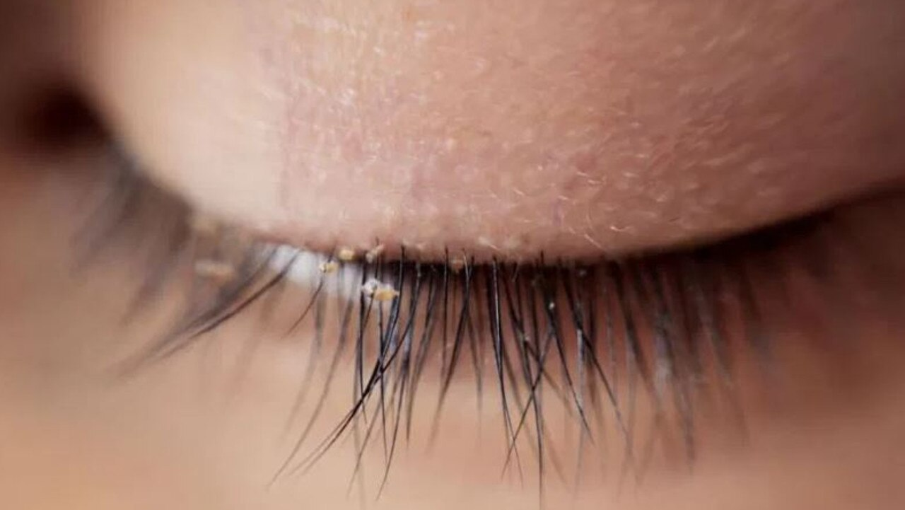 Optometrists are fearful of growing numbers of 'eyelash lice'.