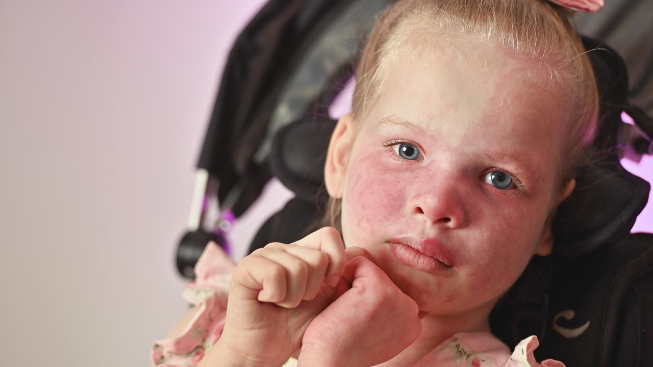 Six-year-old Sophia Lonergan was born with Sturge-Weber Syndrome. Photo: Cordell Richardson