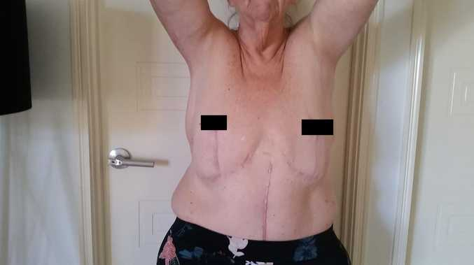 'I lost my nipples to gangrene': Heartbreak after surgery