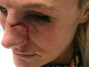 MMA star brutally attacked outside home