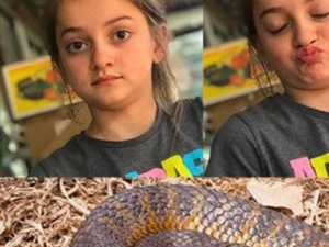 'SHATTERED': Young girl faces slow recovery from snake bite