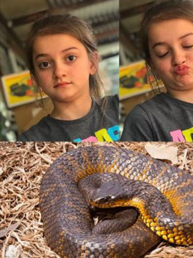 London, from the Byron Shire, potentially faces months of recovery after being bitten by a tiger snake last Tuesday whilst tending the family's chicken pen.
