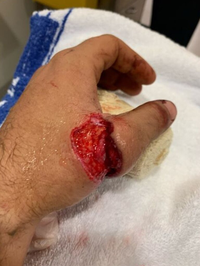 Jarrod Kennewell almost lost his thumb when a wasp flew into his face while he was using an angle grinder. Photo: Contributed