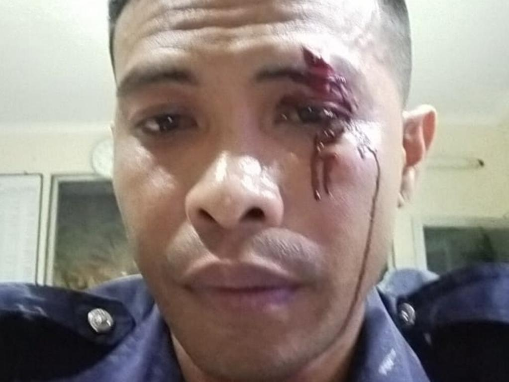 Security guard Adni Junus Liu after the alleged attack by Zac Whiting. Picture: Supplied