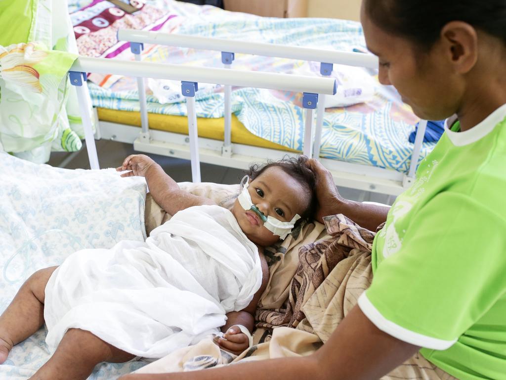Monalisa Matulino with her child Tiresa Muliselu, 7 months at Tupua Tamasese Meaole Hospital. Picture: Infinity Images Fiji