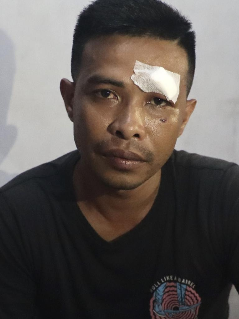Mr Liu received stitches for his injury. Picture: Lukman S. Bintoro.