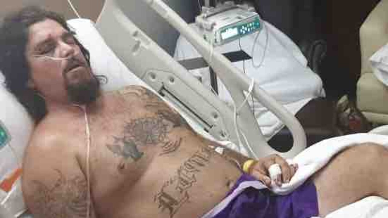 Phuket doctors are working to save Stanage Bay Jason Mitchell's foot after a motorbike accident last Saturday night.