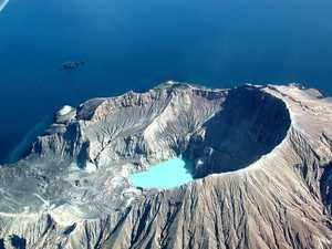 Volcano victims' appalling injuries
