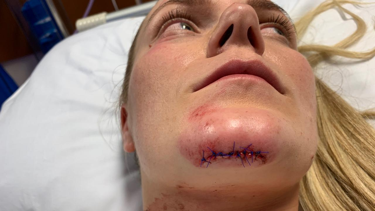 Moranbah mum Hayley Adamson, 29, was left with a fractured jaw, 12 cracked teeth and eight stitches in her chin after she says her Lime Scooter malfunctioned while she was riding it in Brisbane. Picture: Supplied