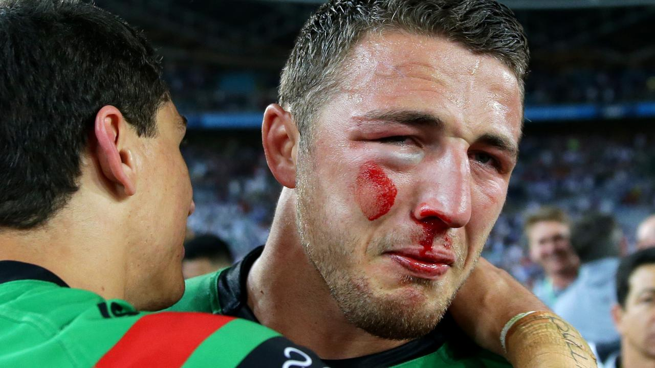 Sam Burgess was a picture of courage after the 2014 NRL Grand Final between the South Sydney Rabbitohs and the Canterbury Bankstown Bulldogs. Picture: Gregg Porteous