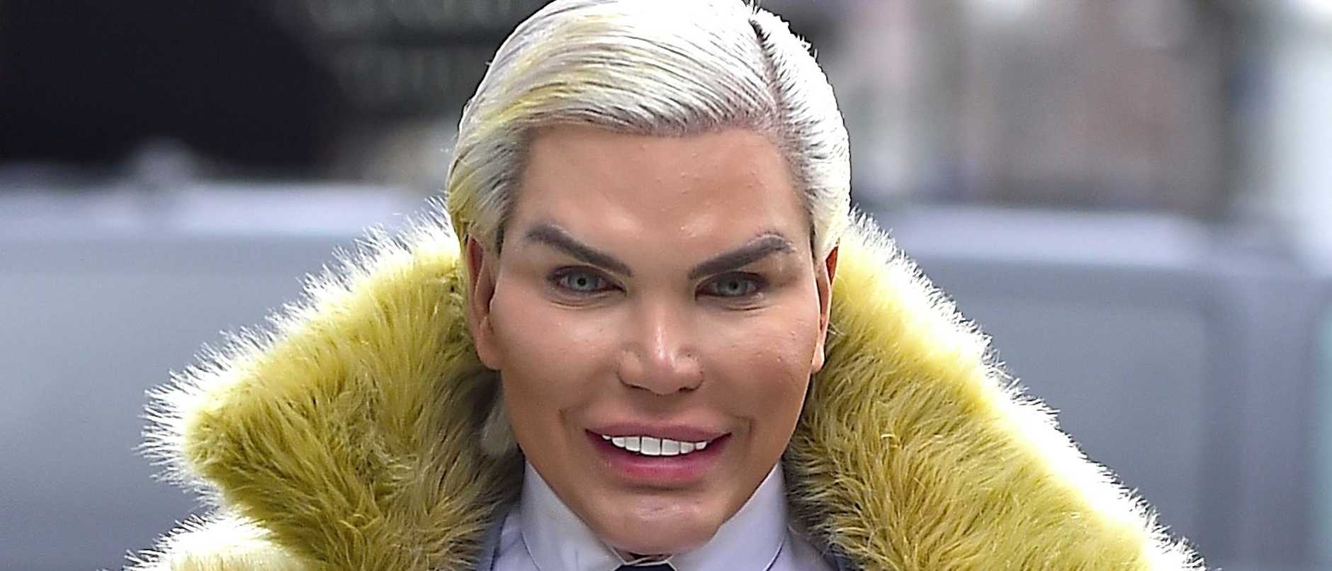 Roddy Alves, was once known as the 'Human Ken Doll' after spending $1 million on surgeries. Now Alves' famous face looks very different.