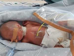 'Miracle' newborn with bleeding brain fights on