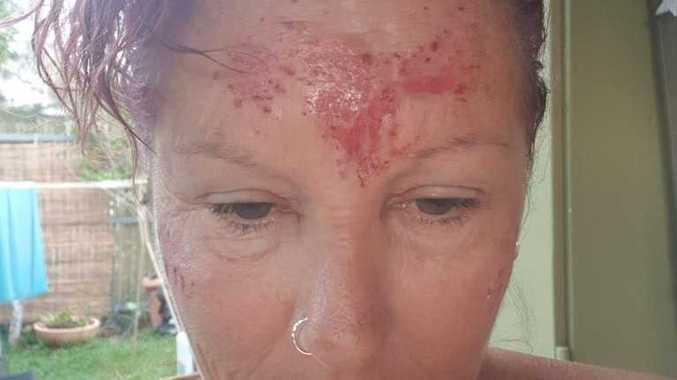 'HORRIFIC PAIN': Ballina woman 'burned' by dangerous tree
