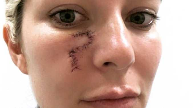 Blind pimple turns into cancer nightmare