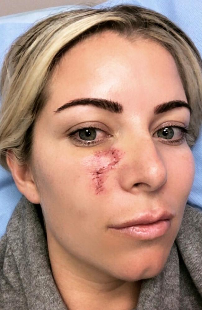 Kirstie Webber said she was shocked to discover a blind pimple under her eye was, in fact, skin cancer. Picture: Supplied