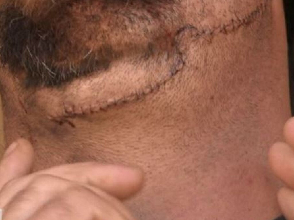 He had to receive multiple stitches as a result of the alleged attack. Picture: Channel 9