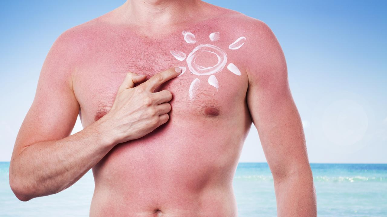 BE SUN SMART: Cancer data has revealed Northern Rivers residents are up to 150 per cent more likely to be diagnosed with melanoma. Picture: Supplied