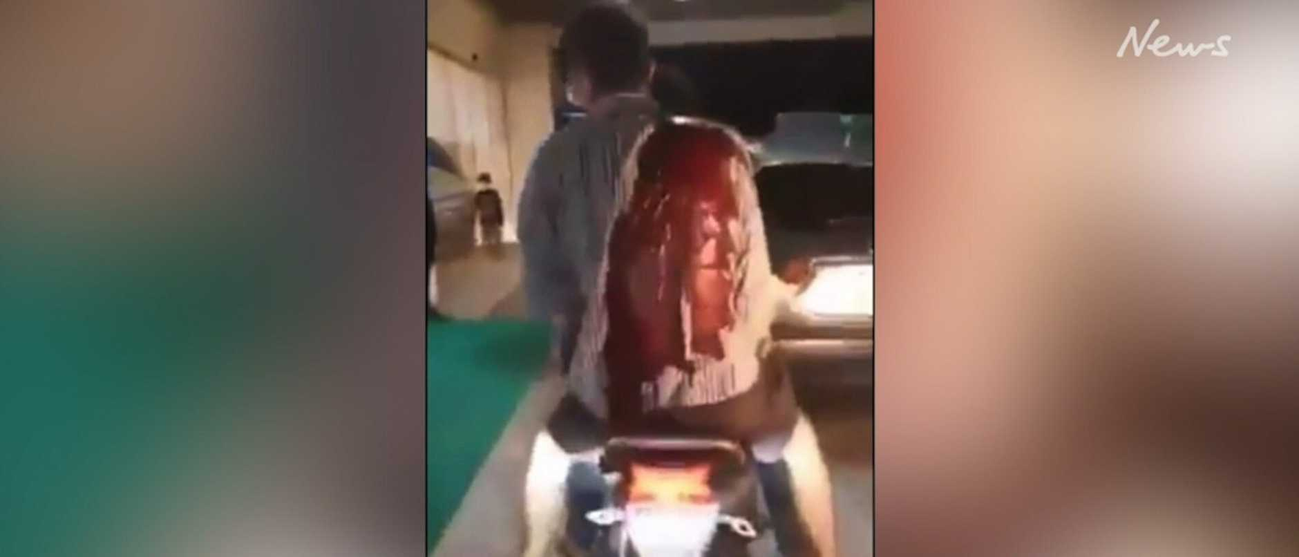 An Australian man was rushed to hospital at the back of a scooter after he was stabbed in a terror attack in the Maldives. WARNING: GRAPHIC