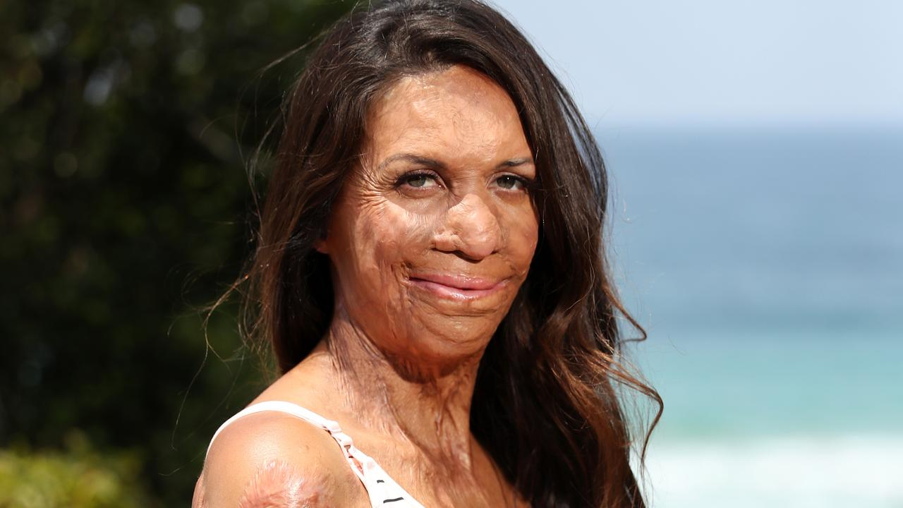 When the bushfire crisis hit close to Turia Pitt's home, she knew she had to focus on keeping her panic at bay. Here's how she overcame it.