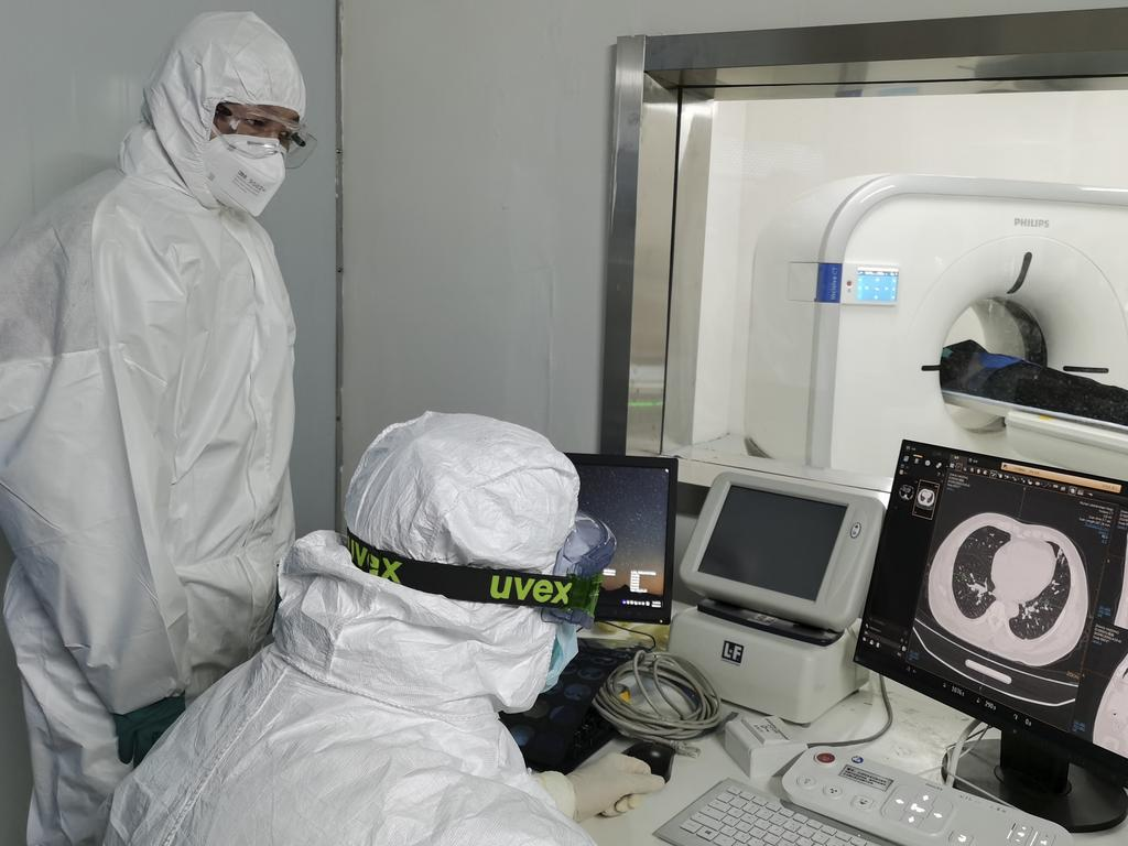 Doctors scan a patient's lungs at Huoshenshan temporary hospital built for patients diagnosed with coronavirus in Wuhan. Picture: AP