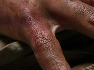 7 gruesome weekend emergencies ambos were called to