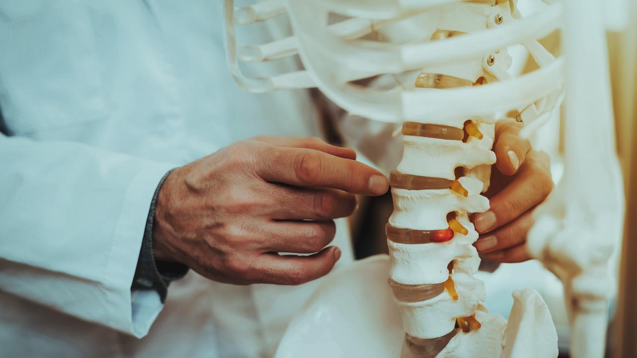Tens of thousands of Australians could be at risk of dangerous side effects from the misuse of a product used in spinal surgery.
