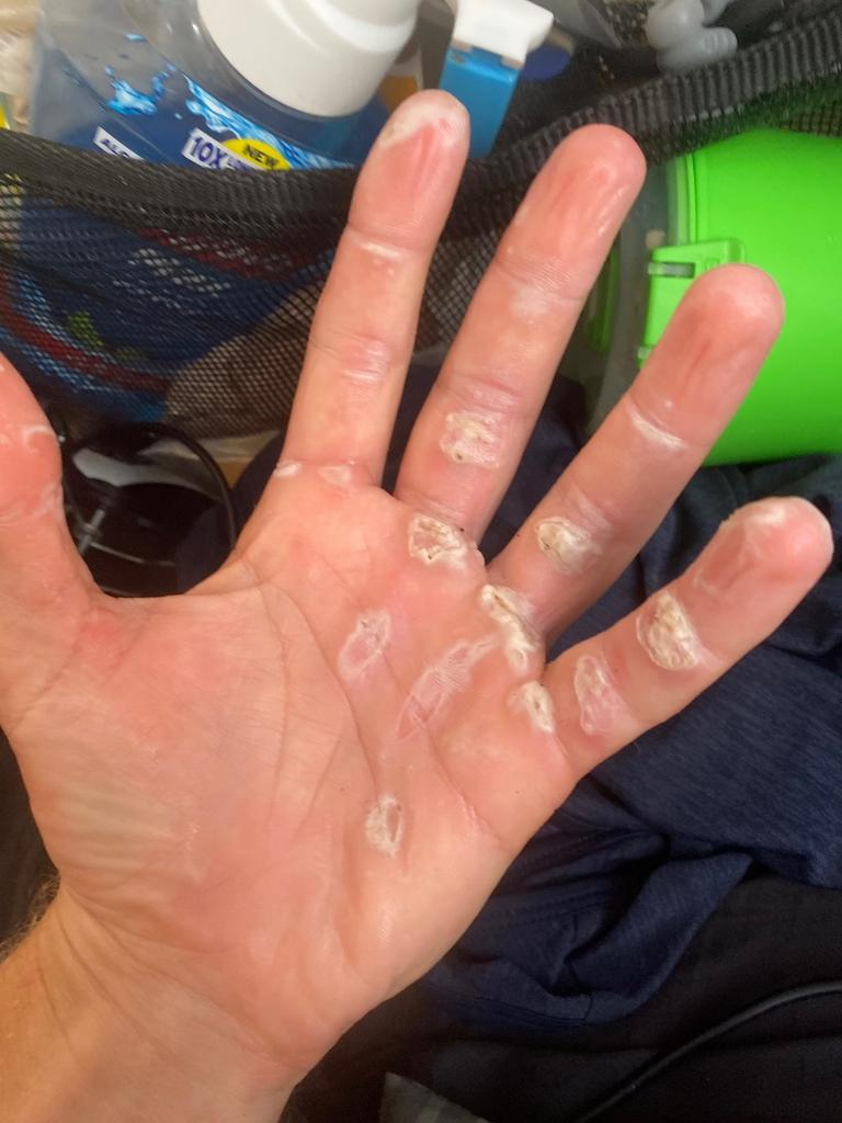 Callous and cracked hands of Ryan Grace.