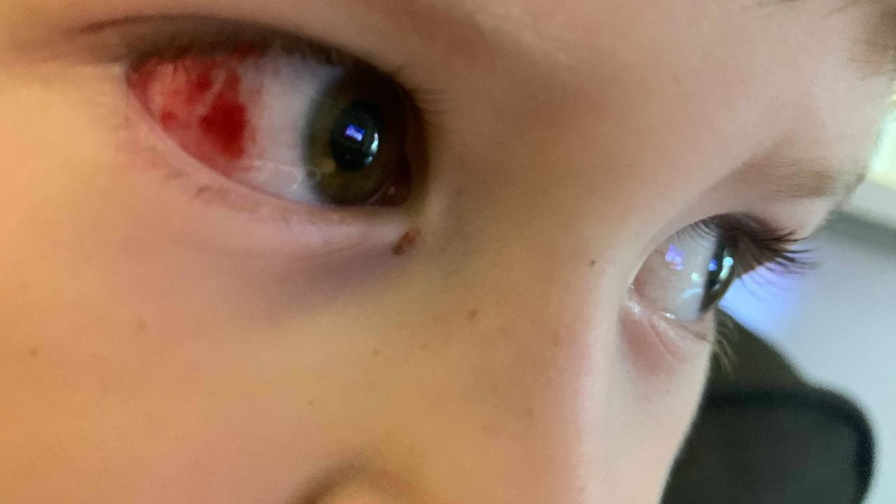 A cult Kmart product that priced at just $3 nearly cost one boy his sight after a shock incident landed him in hospital.