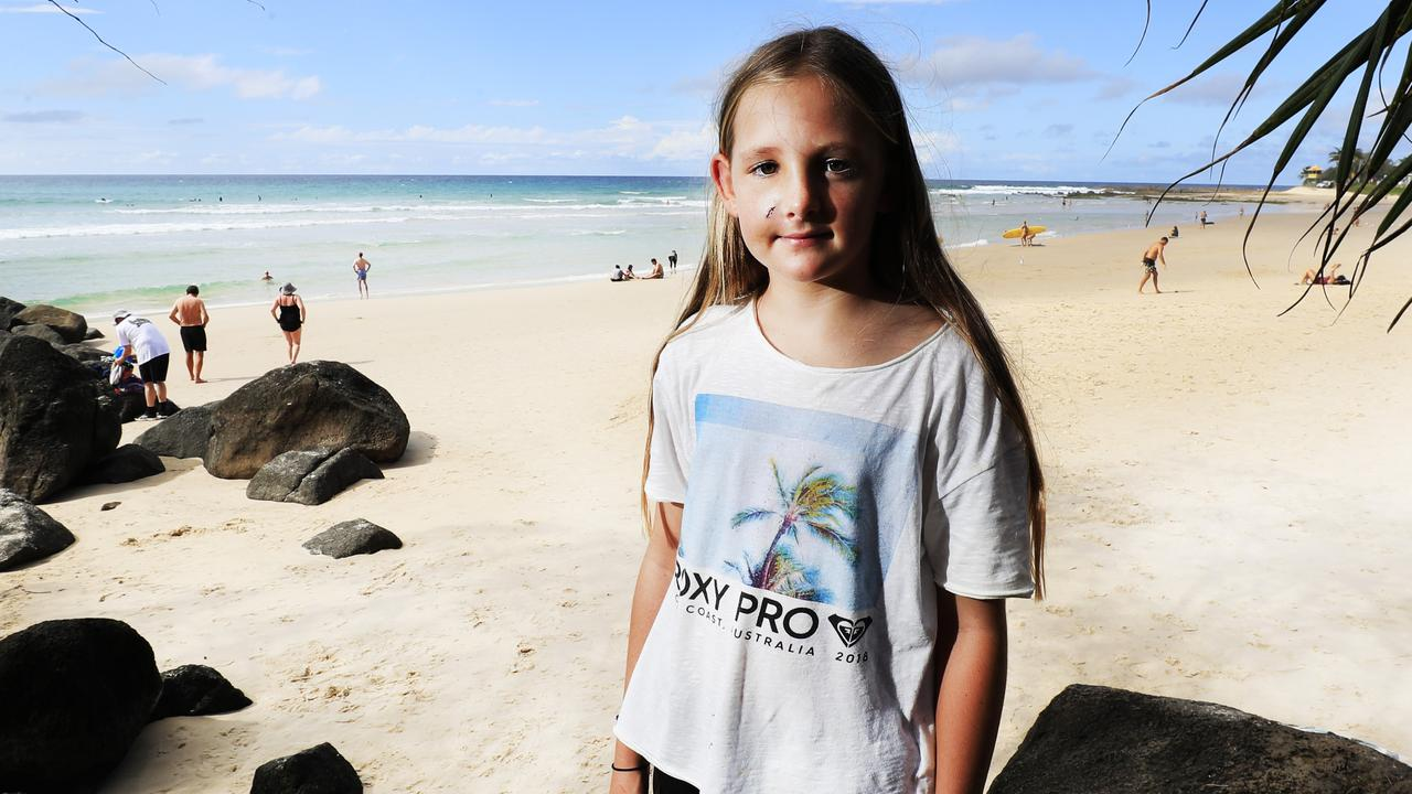 SURF RAGE: An 'avoidable' surf accident at Rainbow Bay has left Chasey Brown, 11, with a broken nose, a fractured cheek and memory loss. Picture: Scott Powick.