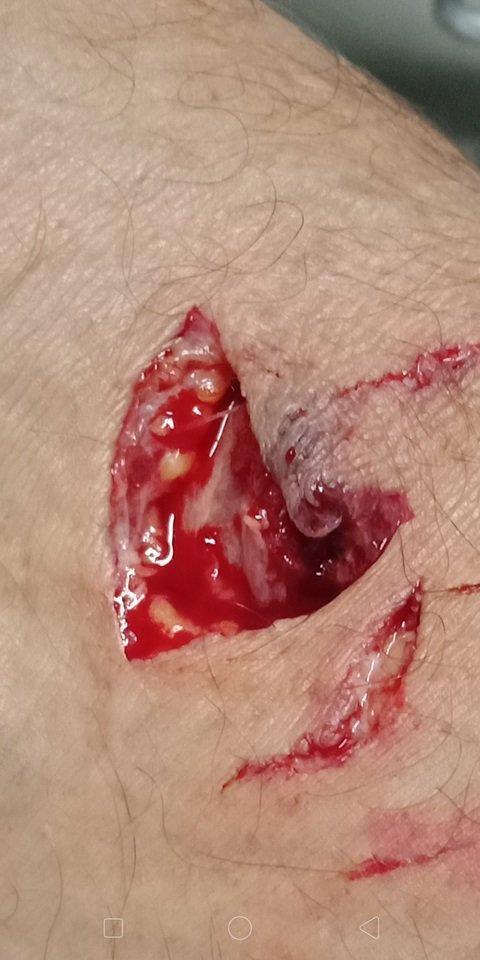 BITE: Joseph Ellul's arm after he was bitten by a dog.