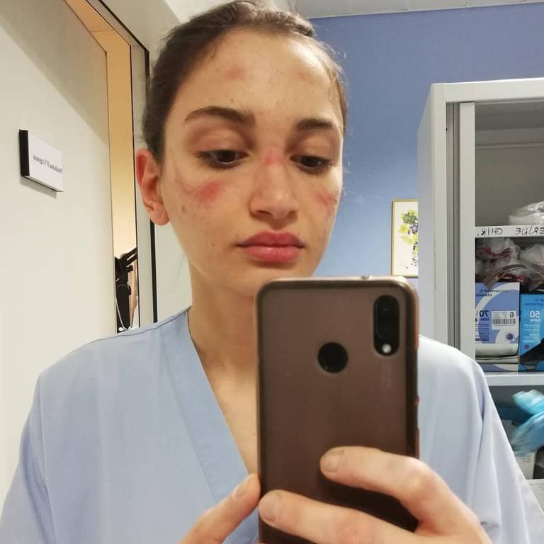 Alessia Bonari recently shared this honest photo to Instagram revealing how poorly fitted protective gear had bruised her face. Picture: Instagram/Alessiabonari