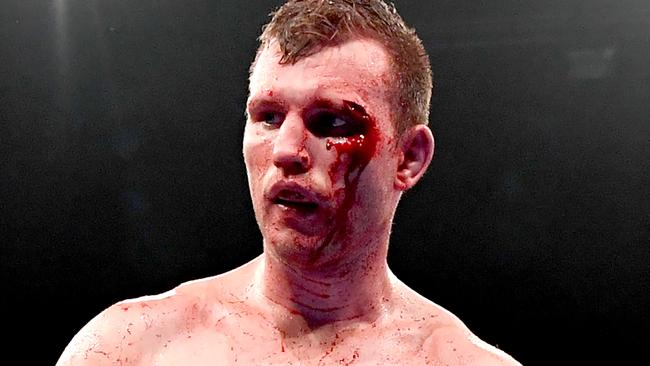 BRISBANE, AUSTRALIA - DECEMBER 18: Jeff Horn is seen bleeding from a cut above his eye shortly after knocking down Michael Zerafa during the middleweight bout between Jeff Horn and Michael Zerafa at Brisbane Convention & Exhibition Centre on December 18, 2019 in Brisbane, Australia. (Photo by Bradley Kanaris/Getty Images)