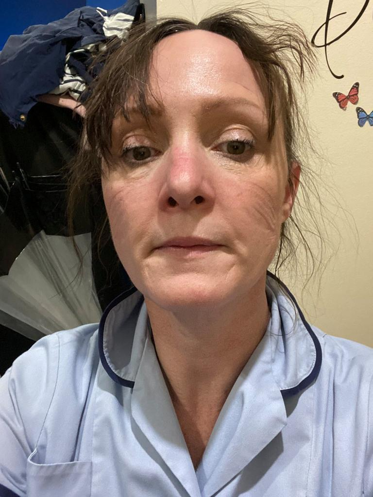 NHS workers have been hailed as heroes as they shared what they look like at the end of an exhausting shift battling coronavirus. Picture: Twitter