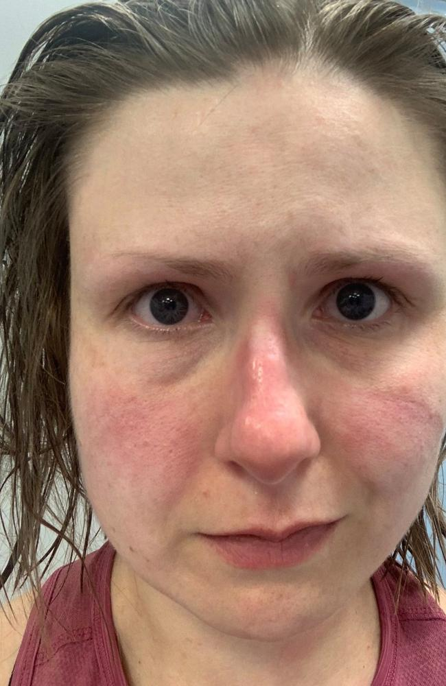 Natalie Silvey posted this picture of herself looking exhausted with a bruised face. Picture: Twitter/Natalie Silvey