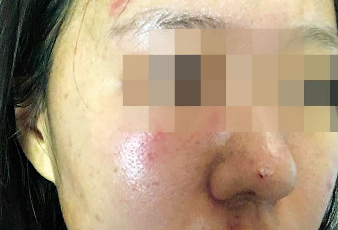 A woman has spoken out after a sickening attack in Bundaberg.