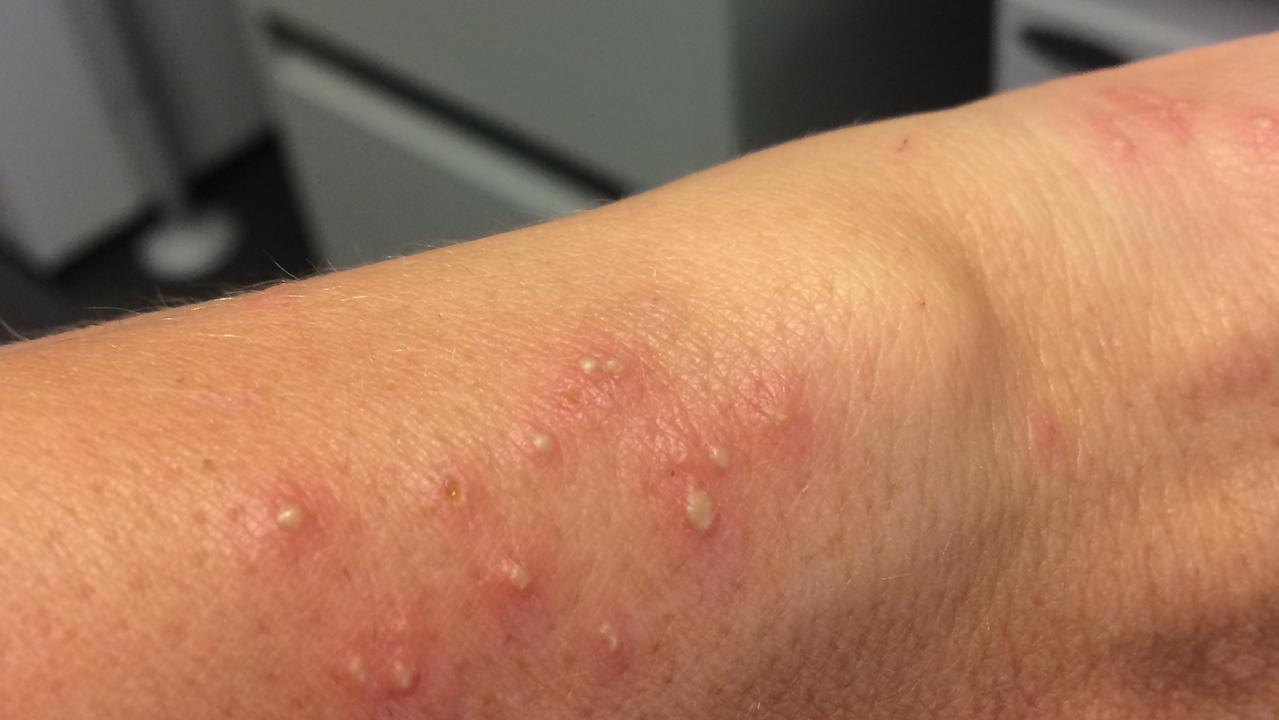 Fire ant bites on Elena Maher's arm.