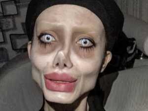 'Zombie Angelina Jolie' on ventilator in Iran