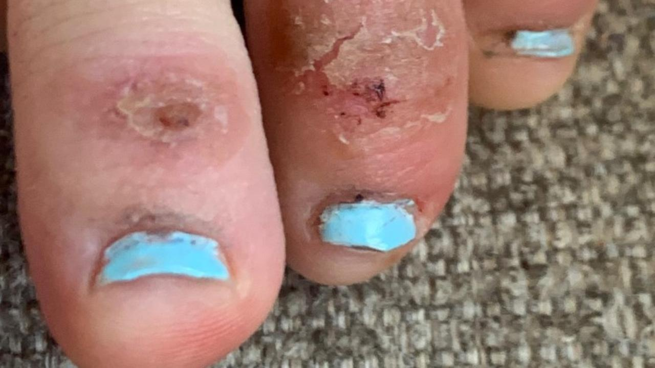 COVID toes. Picture: Dr. Amy Paller, Northwestern University