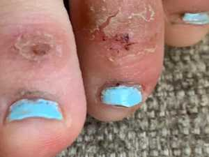 Are 'covid toes' a telltale sign of virus?