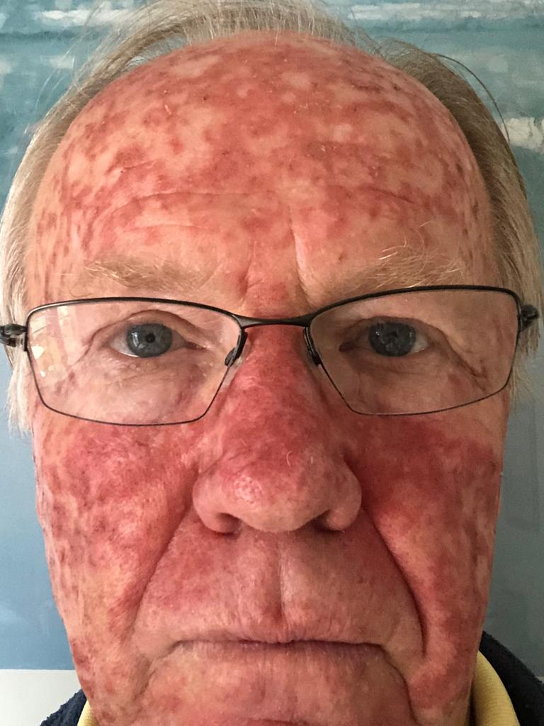 Former ARL boss Peter Beattie recently started a treatment program for sun spots on his face.