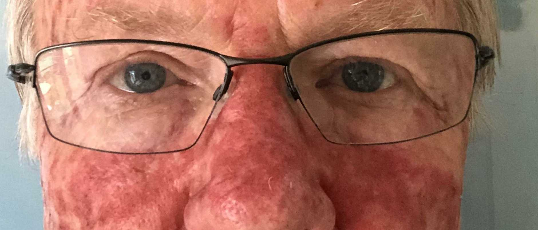 Peter Beattie says people will see his 'ugly face'