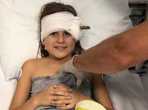 Little girl's miracle recovery after being impaled by stick
