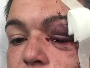 'Eyeball exploded': Rubber bullet blinds photojournalist