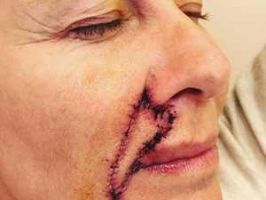 Aussie star's shocking surgery aftermath